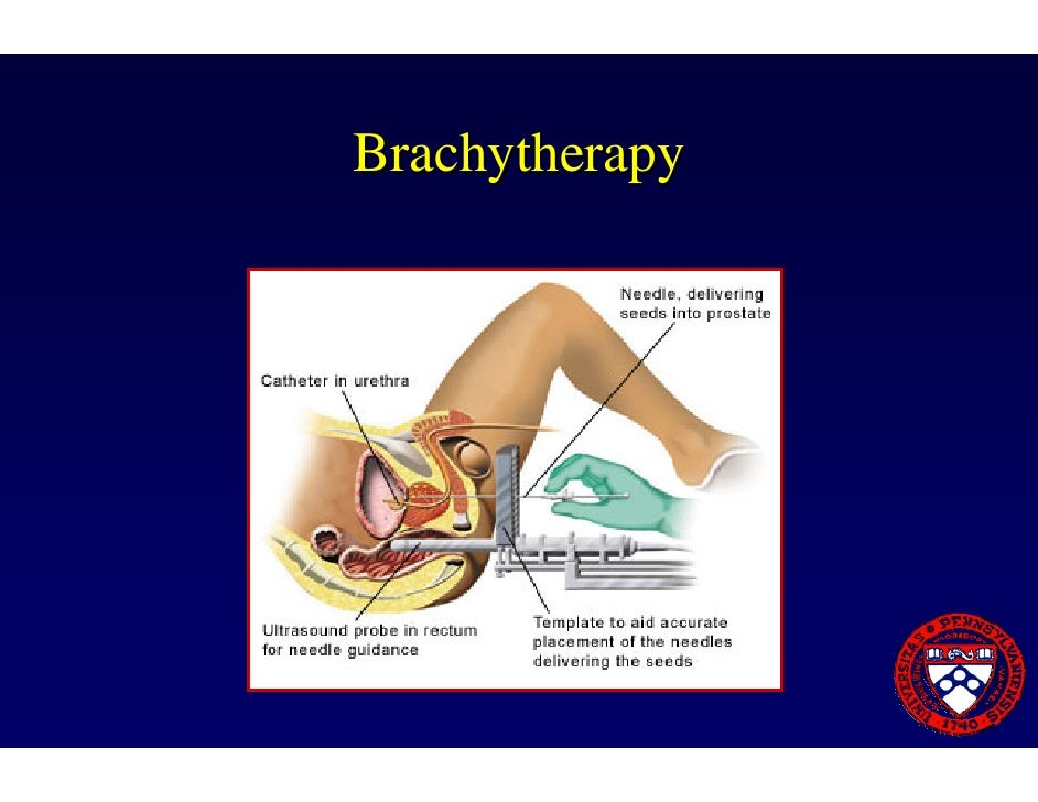an example of brachytherapy would be
