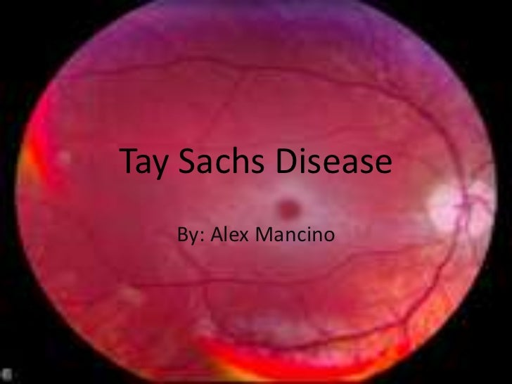 tay sachs disease is an example of a n
